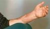 В Италии проведена уникальная операция по перасадке обеих рук