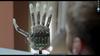 Создан биопротез руки, способный передавать тактильные ощущения