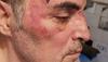 В провинции Турина соседи избили итальянца за то, что он гей